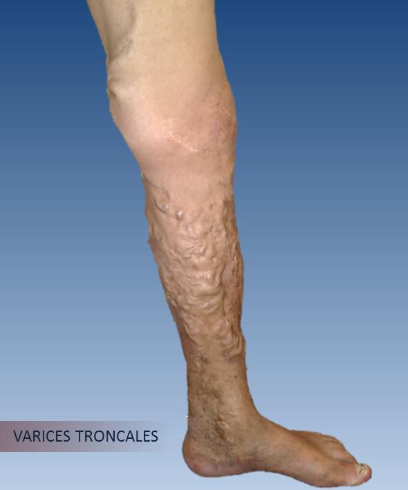 venas varicosas úlceras del pie
